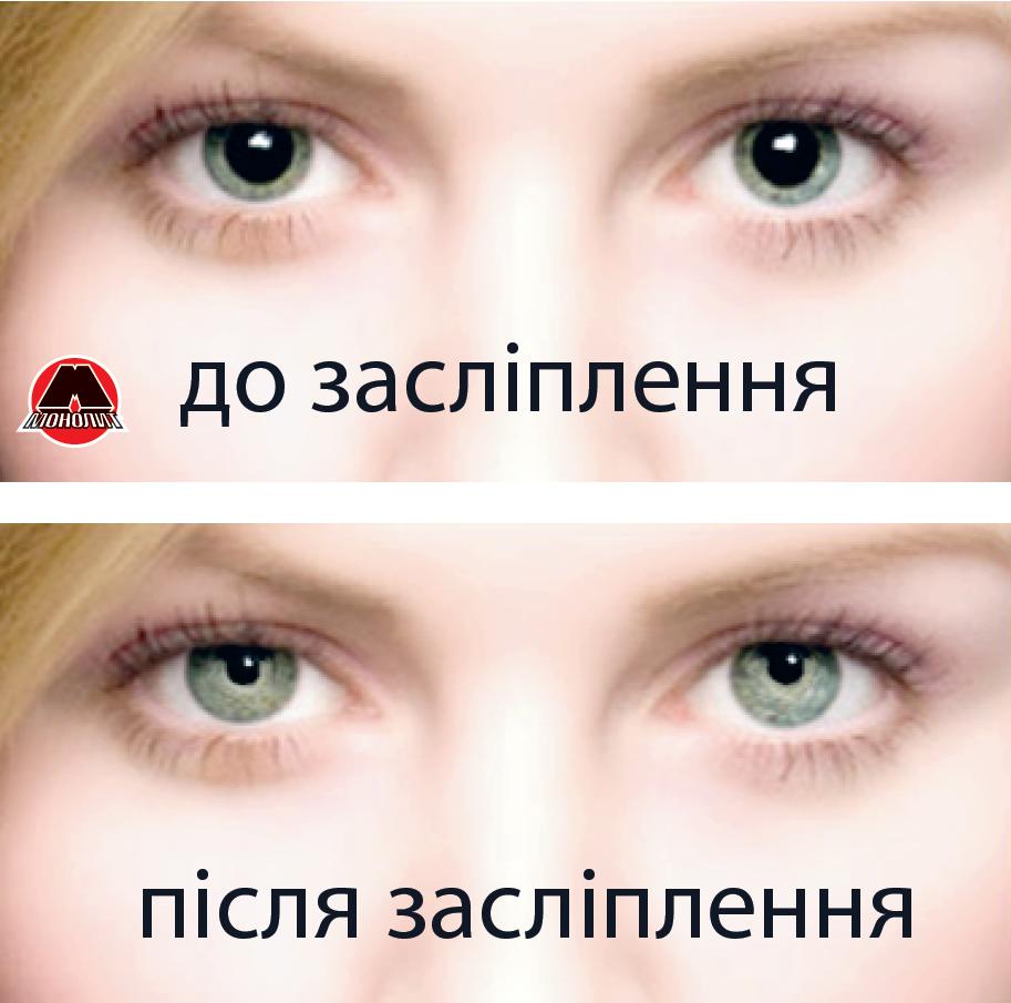 Последствия ослепления